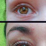 Eyelash_lift_and_botox
