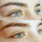 Eyelash_lift_and_botox1