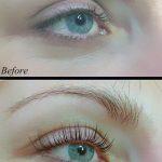 Eyelash_lift_and_botox5