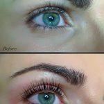 Eyelash_lift_and_botox6